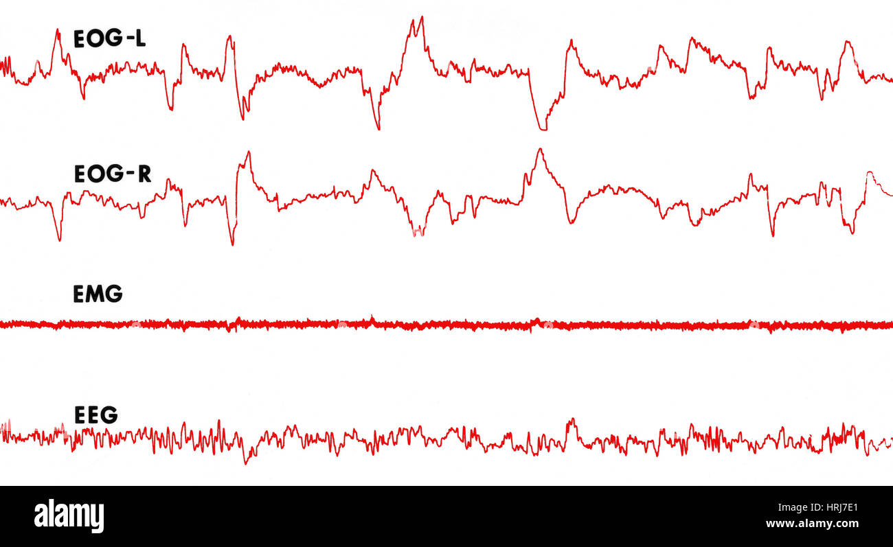 Polygraph Tracings of REM Sleep - Stock Image