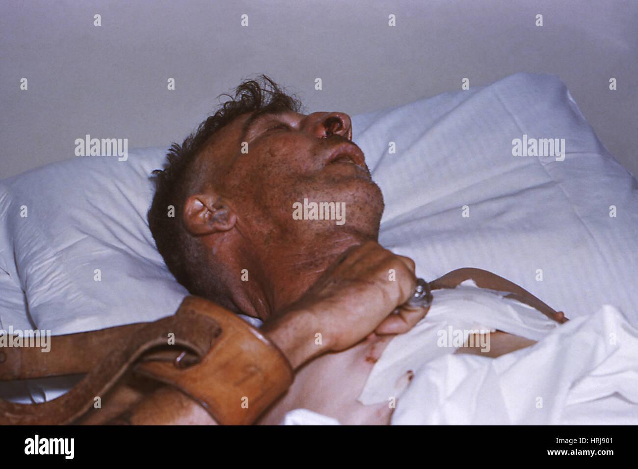 Hospitalized Rabies Victim, 1958 - Stock Image