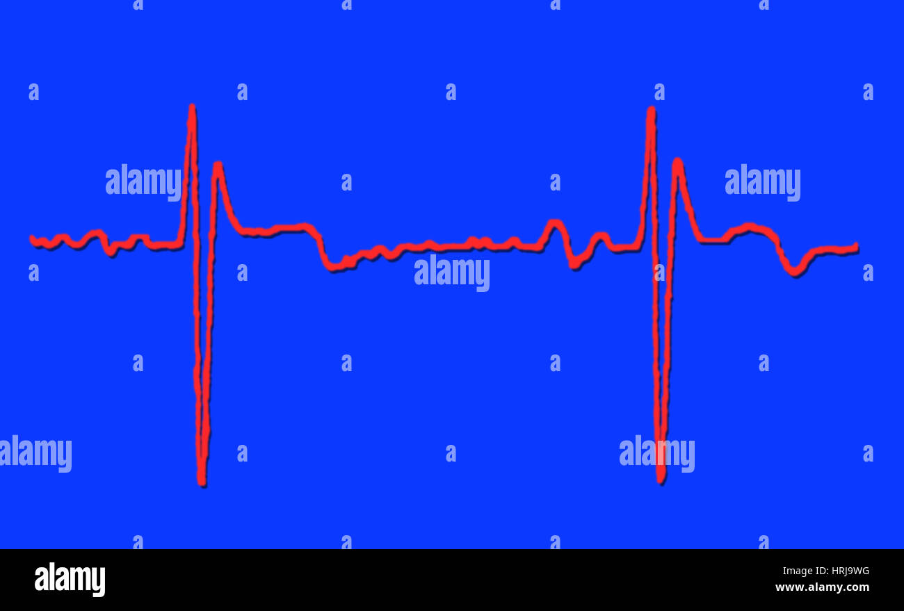 Normal ECG - Stock Image