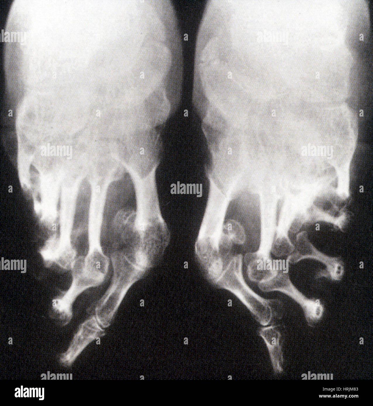 Bound Feet X Ray Stock Image