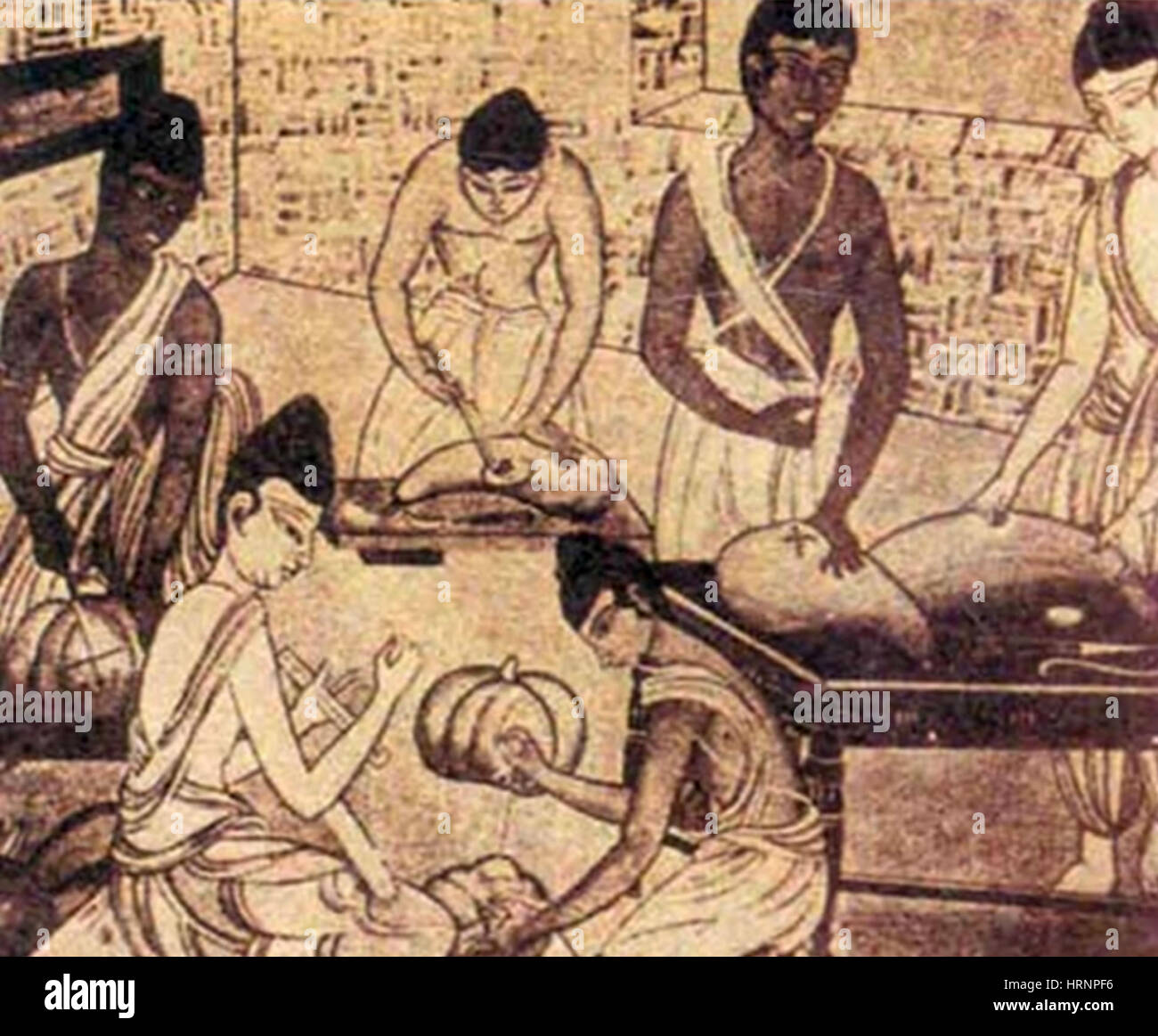 Saushrutas, Practicing Surgery, 800 BC - Stock Image
