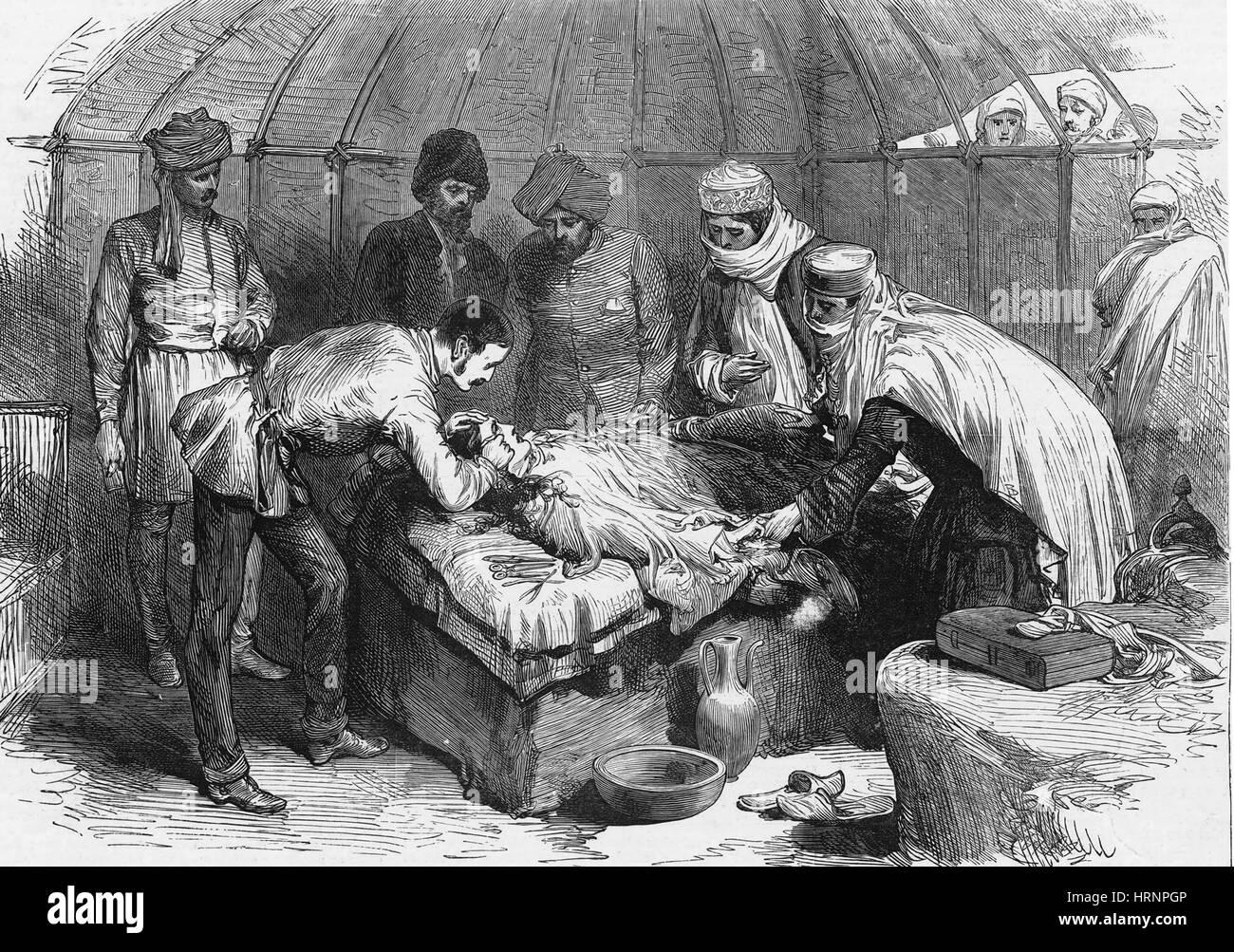 Burn Surgery, 1885 - Stock Image