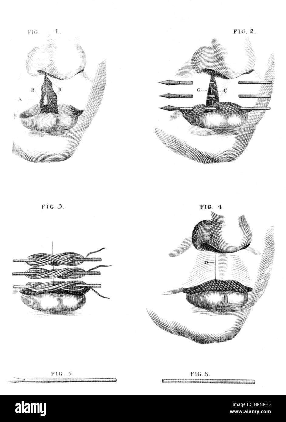 Cleft Lip Surgery, 1791 - Stock Image