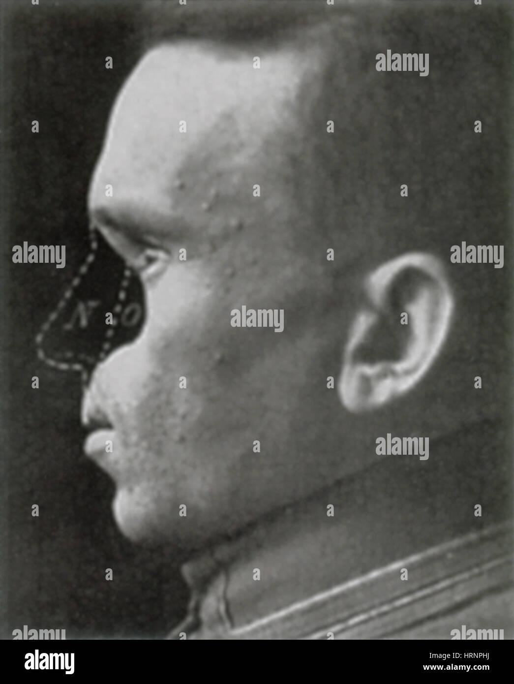 WWI Veteran Needing Reconstructive Surgery - Stock Image