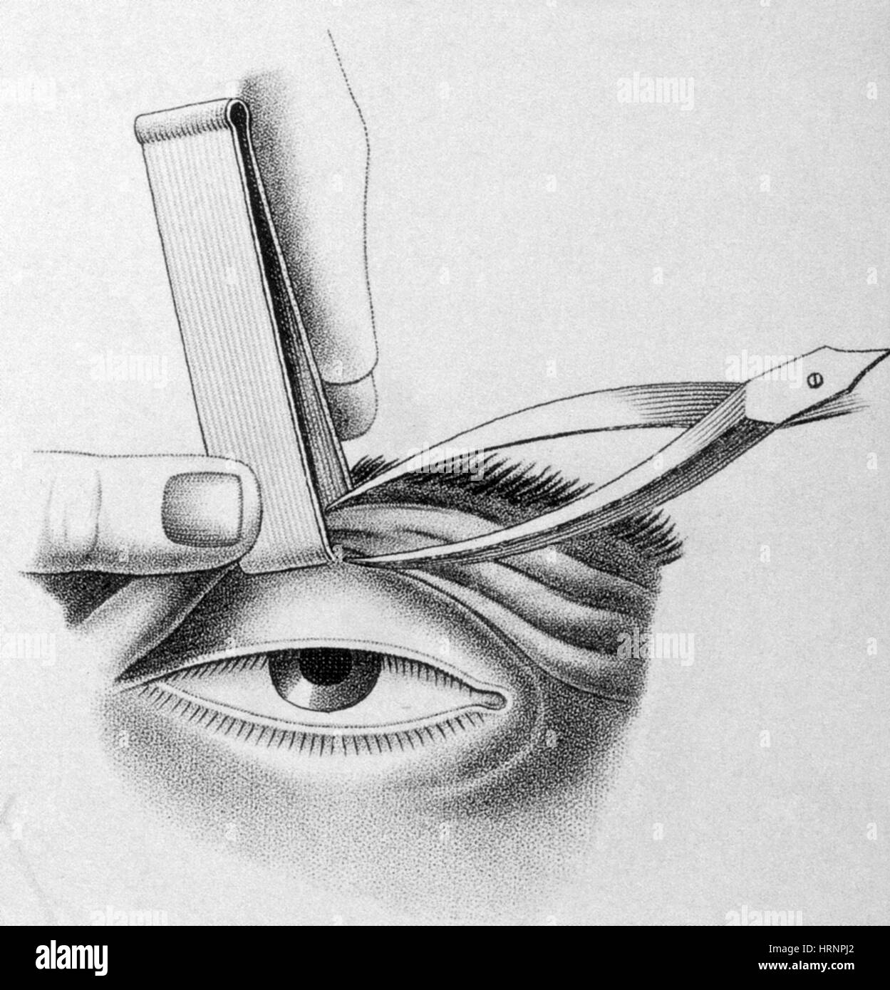 Surgery to Correct Lazy Eyelid, 1830 - Stock Image