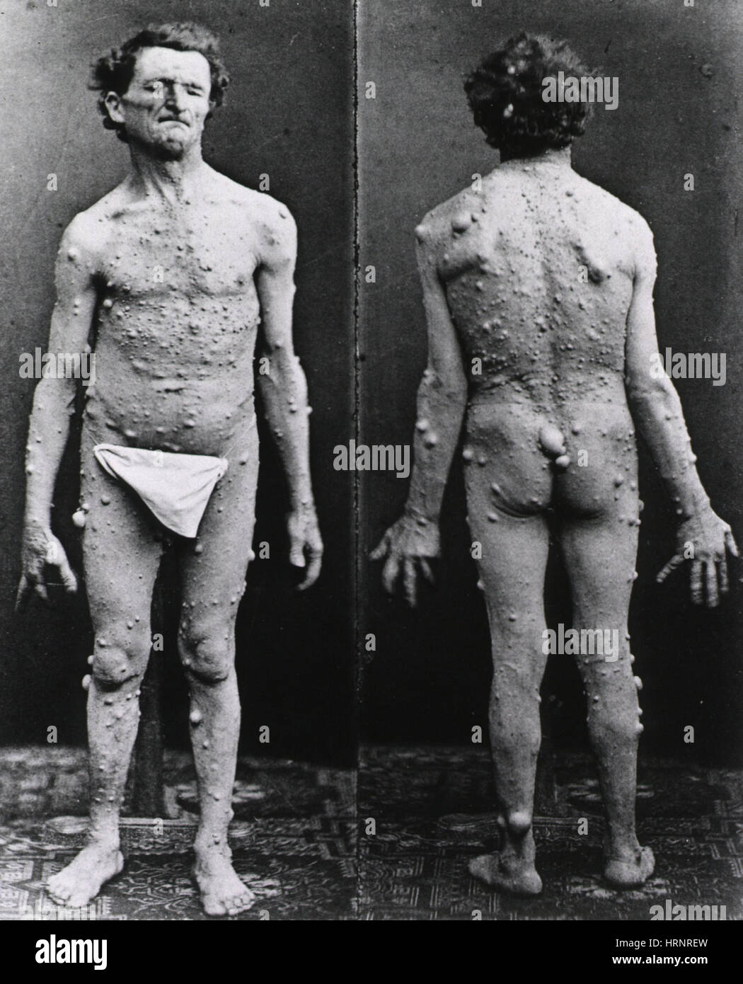 Neurofibromatosis, 1882 - Stock Image