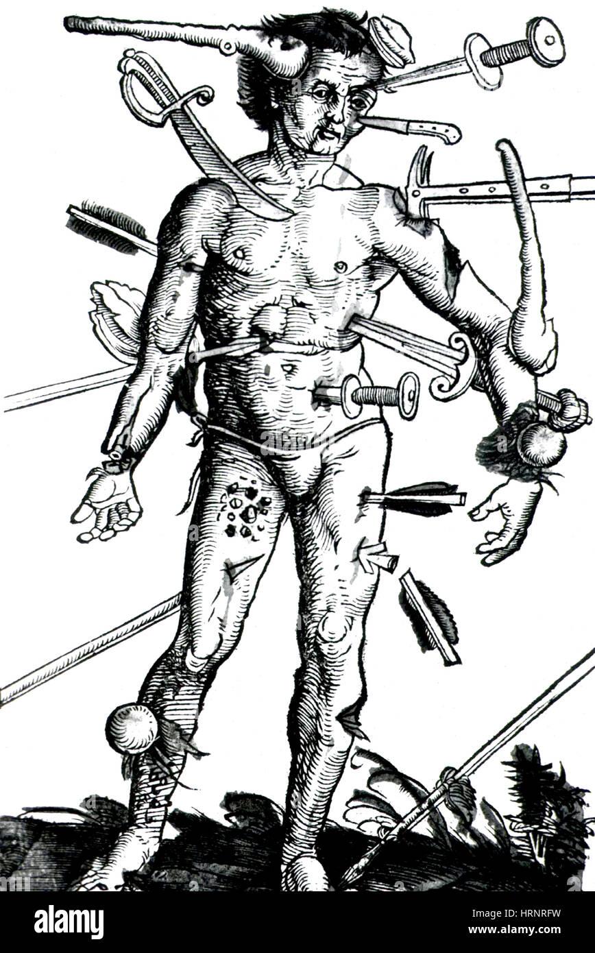 """Wound Man, """"Feldbuch der Wundartzney"""" 1517 Stock Photo"""