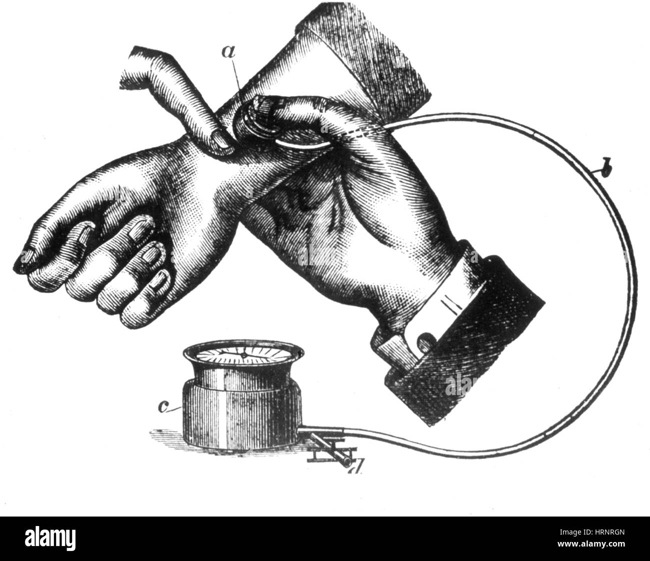 Sphygmomanometer, 1883 - Stock Image
