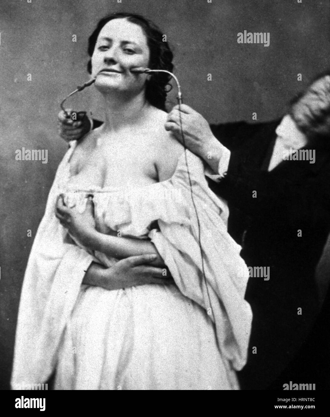 G.B.A. Duchenne Performs Electrotherapy, 1862 - Stock Image