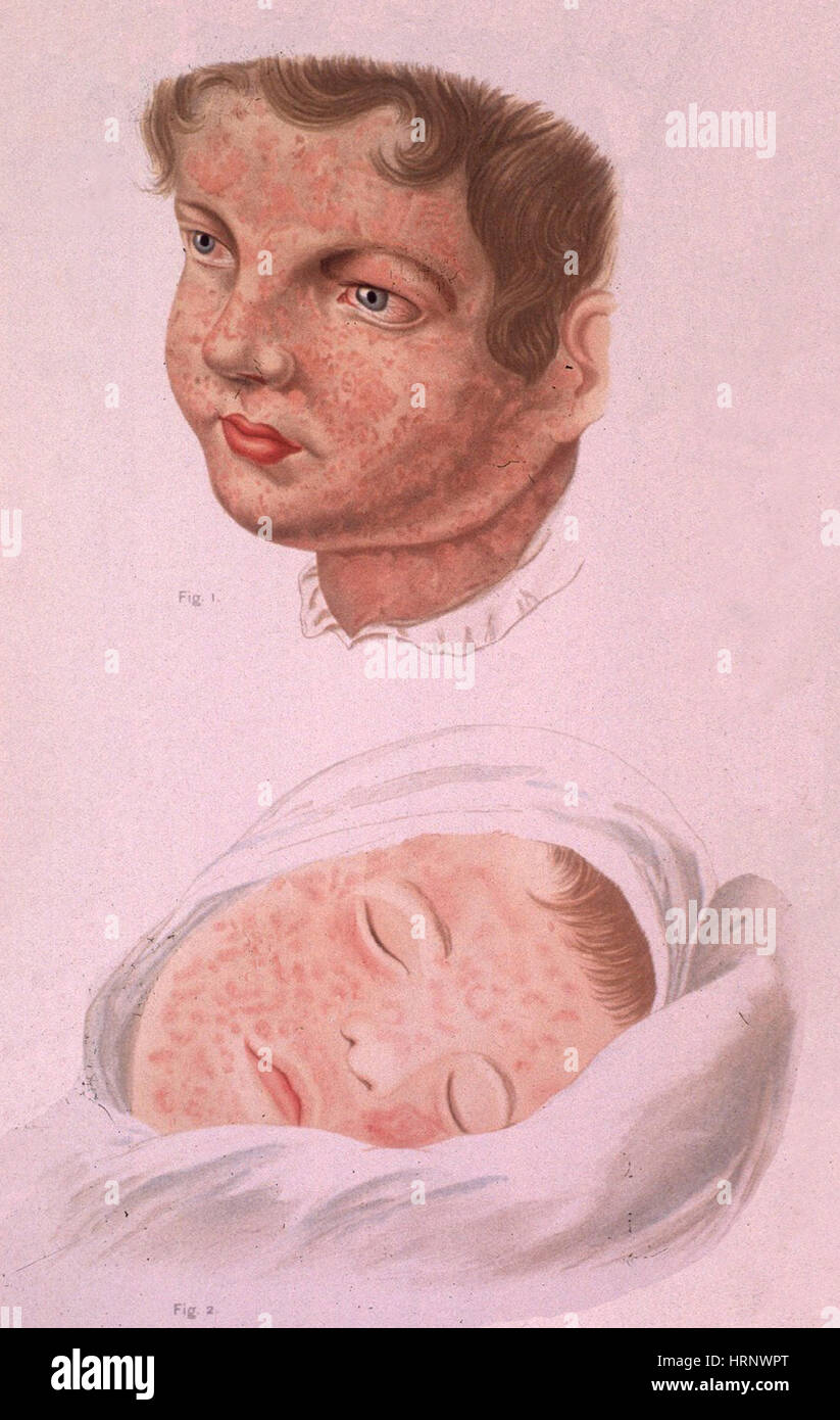 Measles Rubeola, 1893 Stock Photo