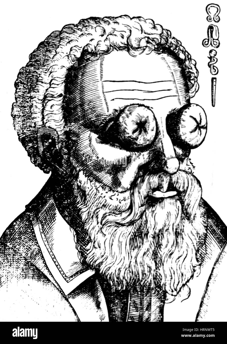 Eye Growths and Witchcraft, 1583 - Stock Image