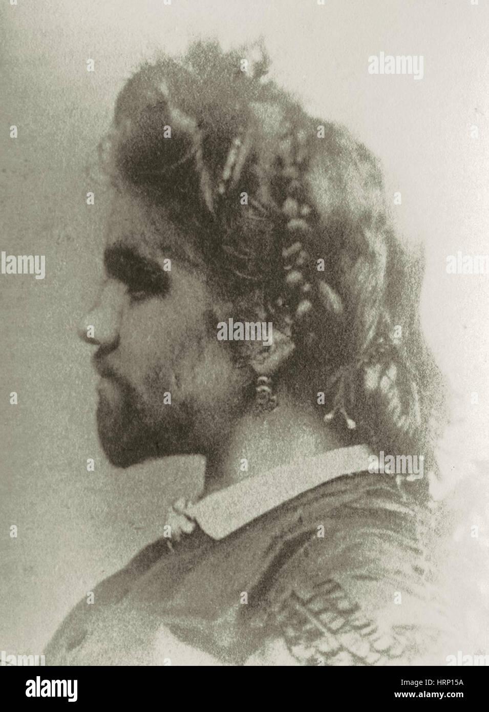 Julia Pastrana, Bearded Lady - Stock Image