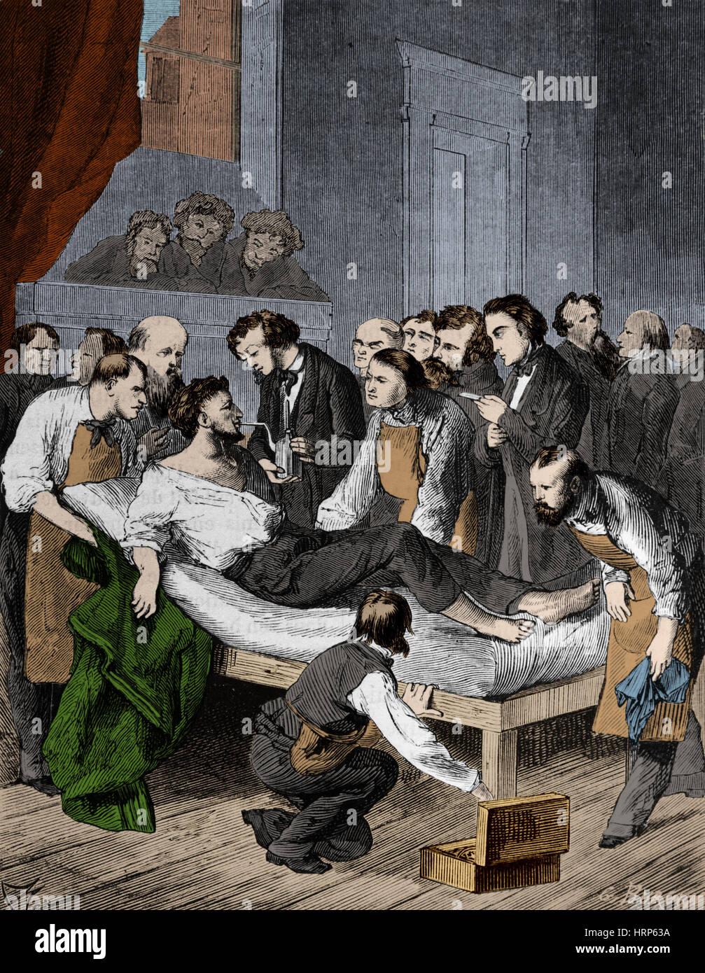 Anesthesia, 1846 - Stock Image