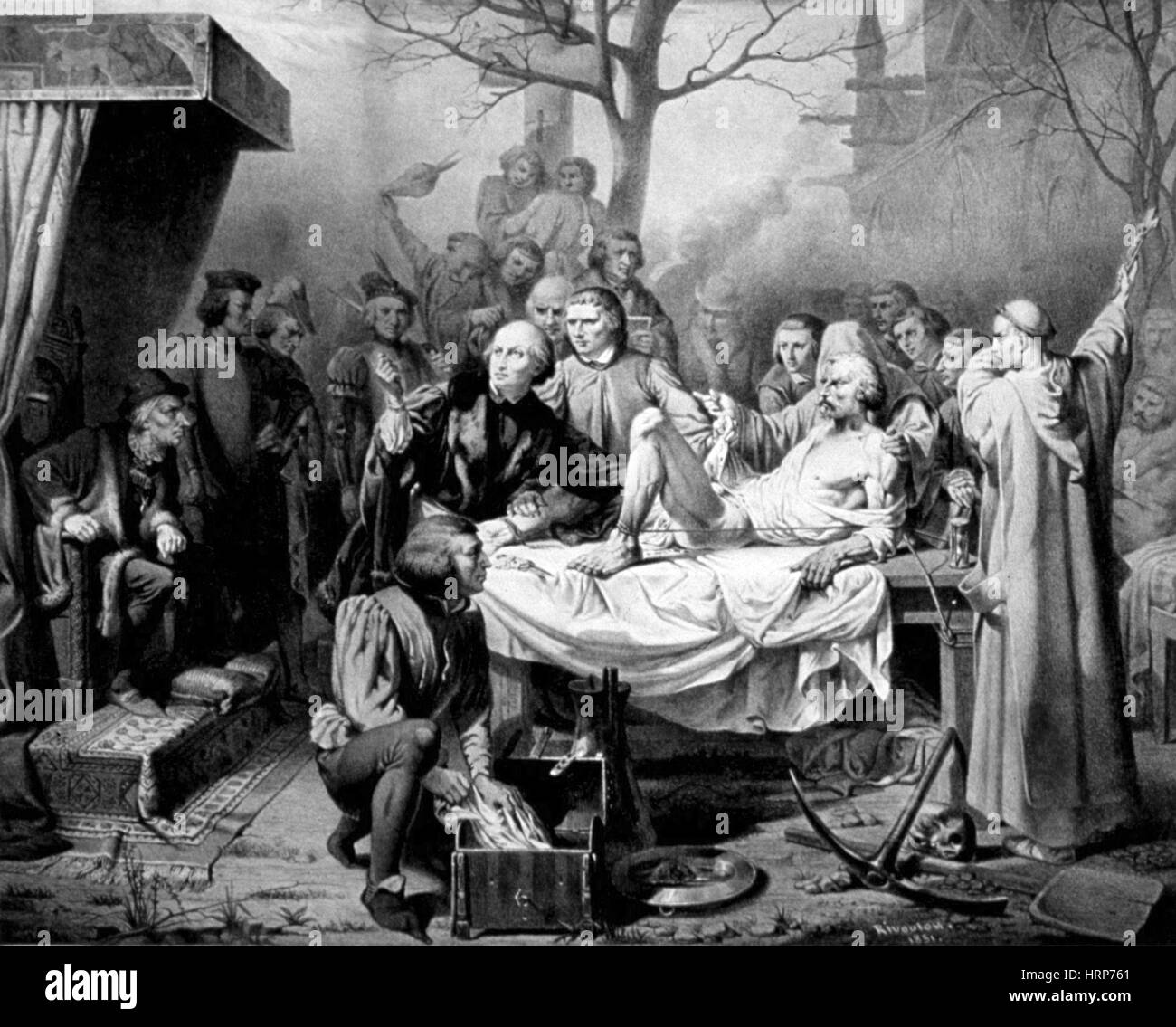 Louis XI Observes Gallstone Surgery, 15th Century - Stock Image