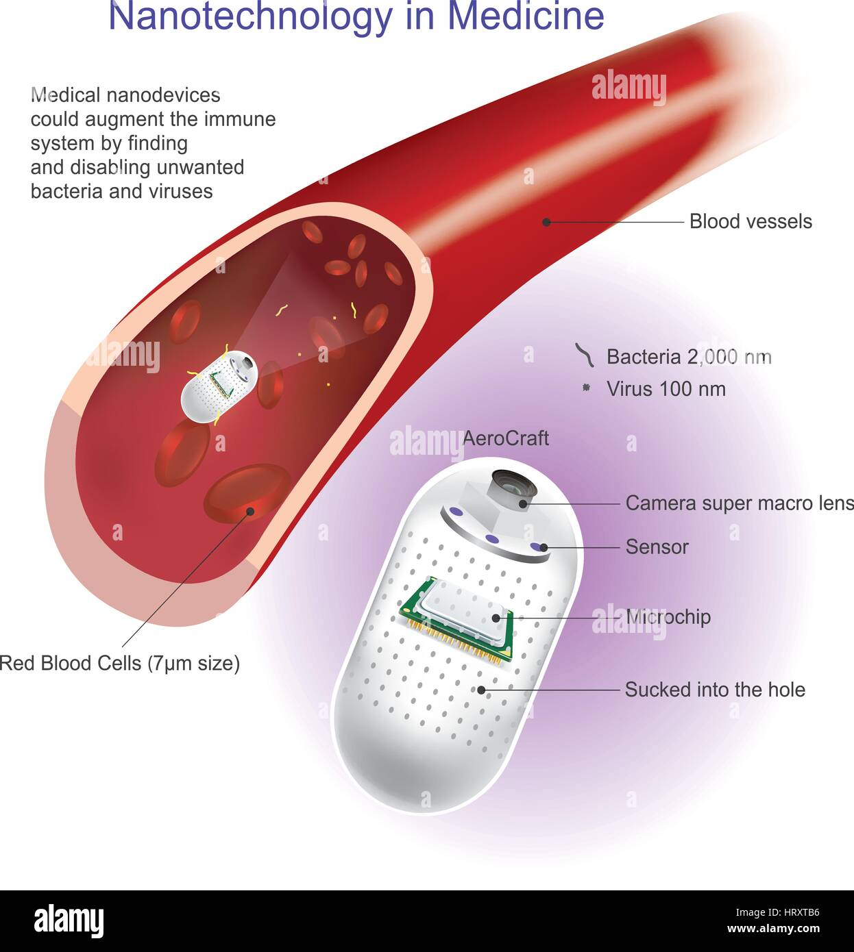 angioplasty or balloon angioplasty is an endovascular procedure to