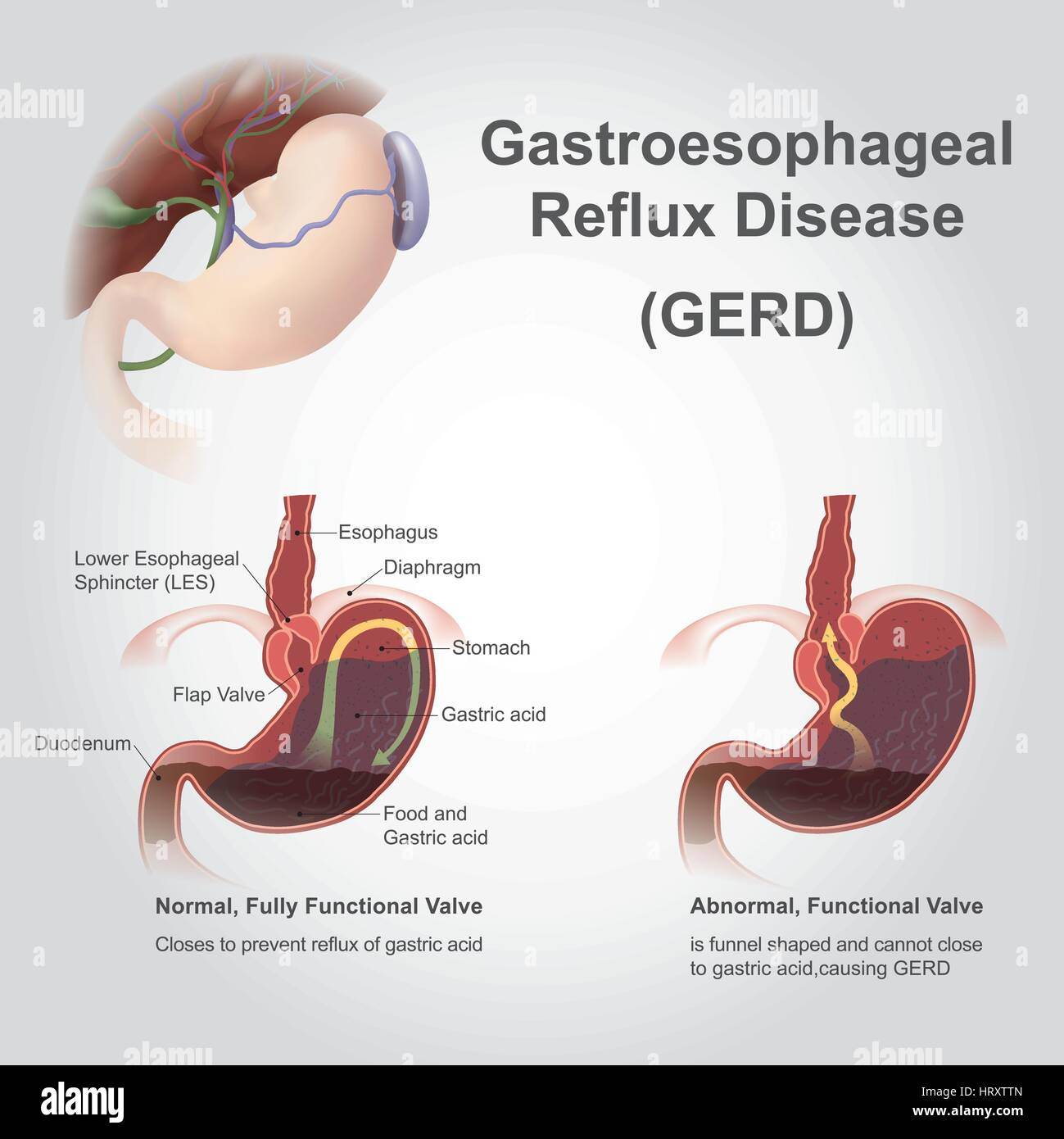 Gastroesophageal reflux disease (GERD), also known as acid reflux, is a long term condition where stomach contents - Stock Vector