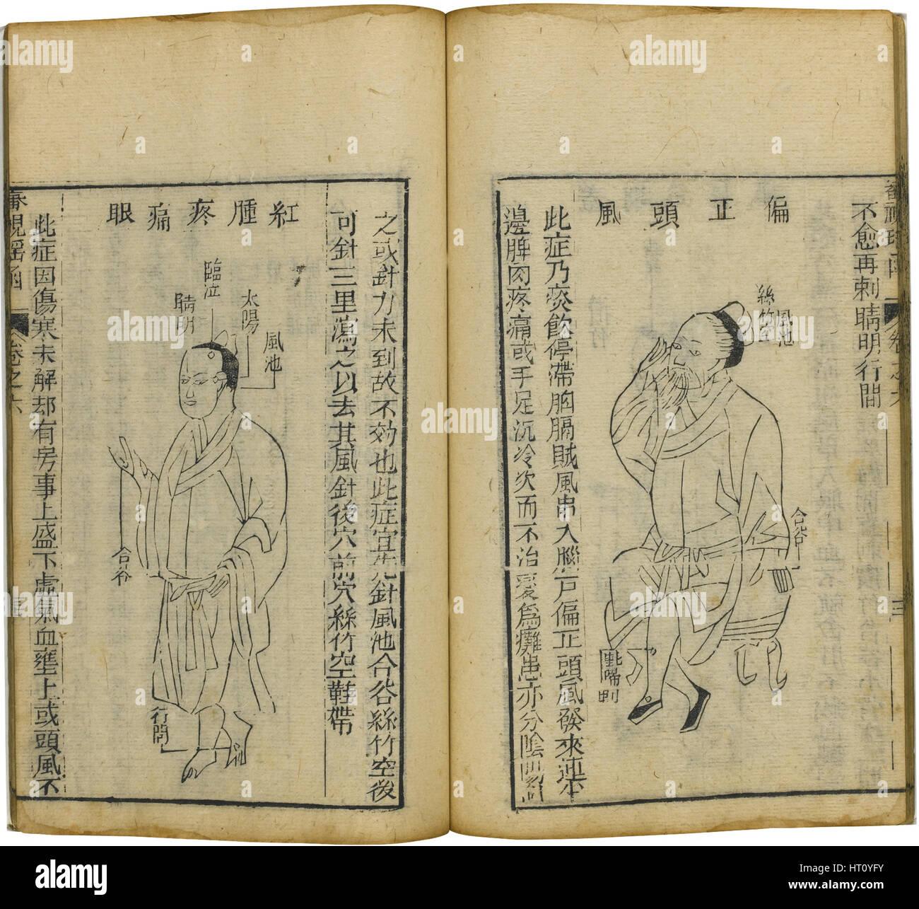 Shen Shi Yao Han (A Precious Book of Ophthalmology), 1644. Artist: Fu Renyu (active Mid of 17th cen.) - Stock Image