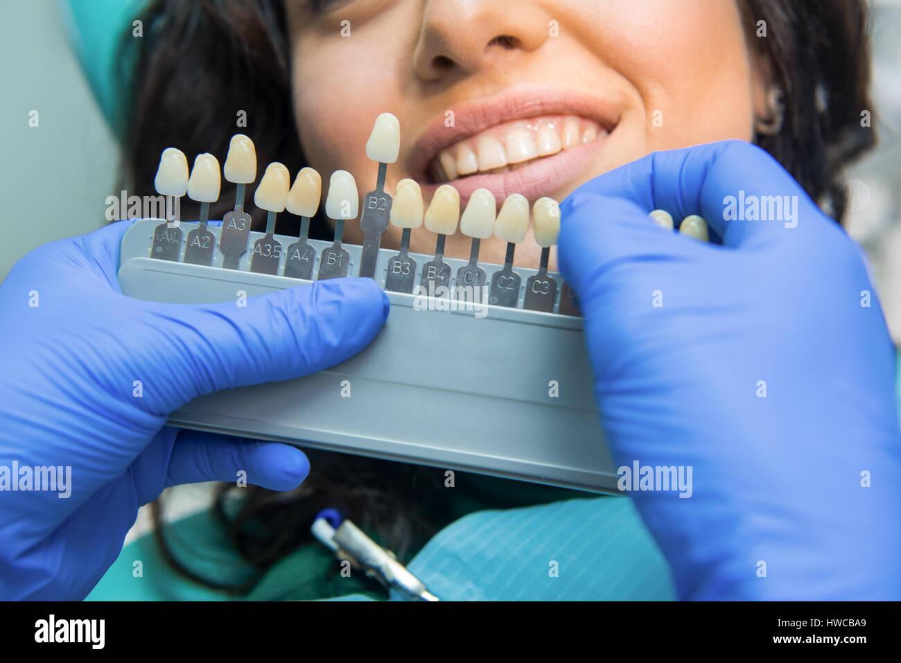 Dental Shade Stock Photos Dental Shade Stock Images Alamy