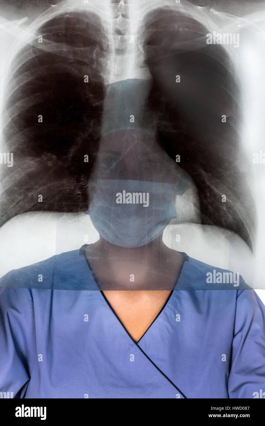 A nurse or doctor in clothes OP before an operation. Symbolic photo for work in the hospital, Eine Krankenschwester oder Aerztin in OP Kleidung vor ei Stock Photo