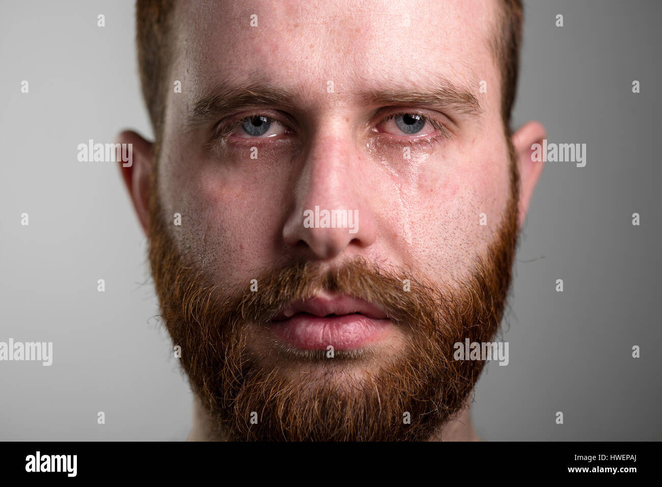 Close Up of a Crying Man with Red Beard - Stock Image
