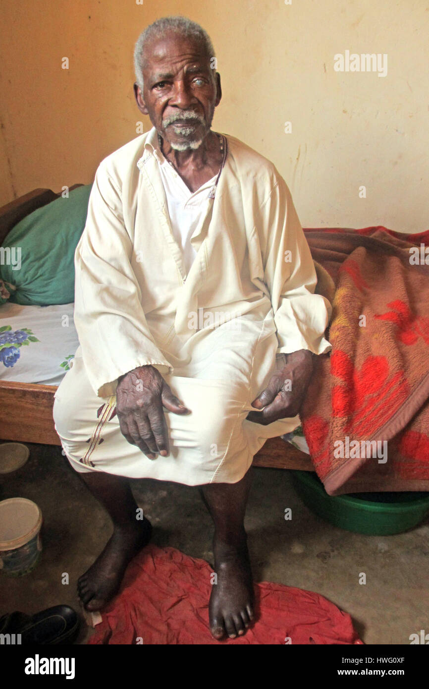 World War II veteran Stephen Kayeb sits on his bed at his home in Kigusa, Uganda, on February 05, 2017. Ugandan - Stock Image