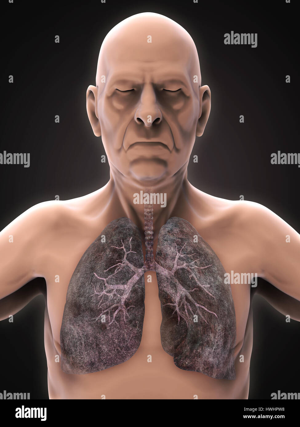 Elderly Male with Lung Cancer Illustration - Stock Image