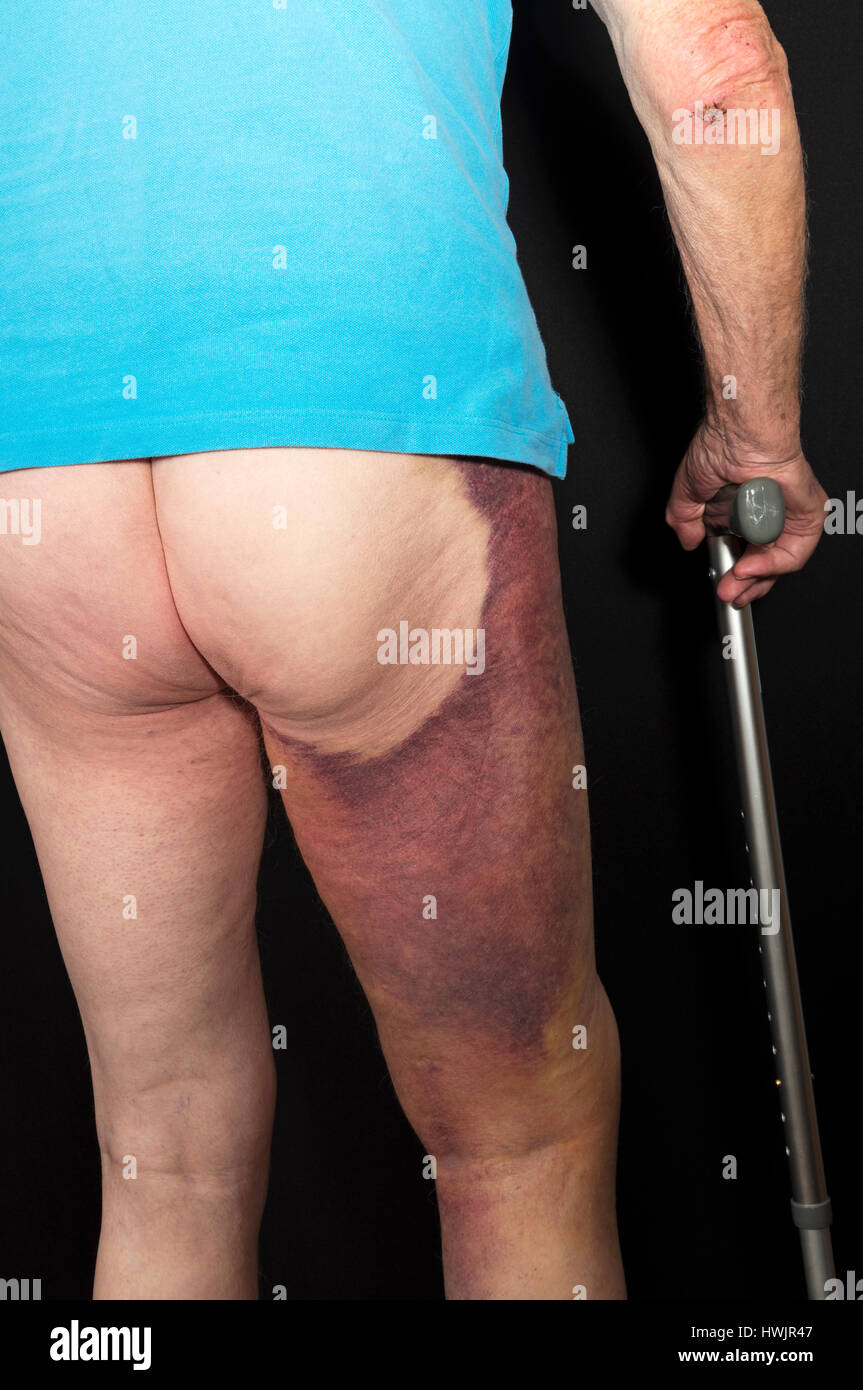 Bruising On A Mans Leg After Knee Replacement Surgery