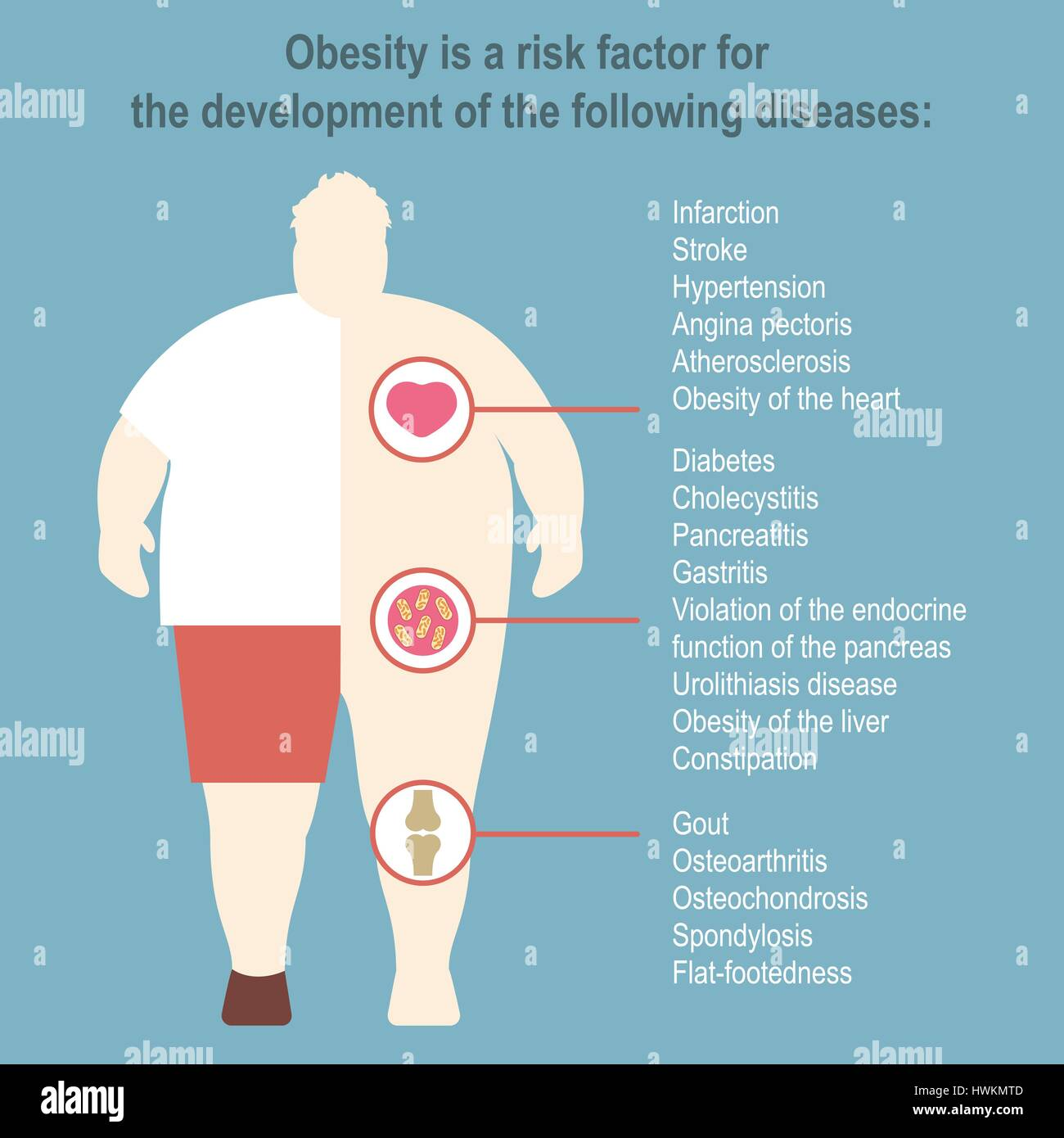 Obesity Vector illustration Poster template The effect of obesity on the health and human internal organs Medical - Stock Image