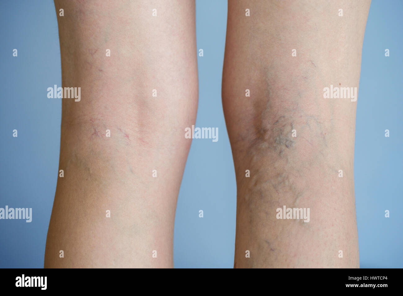 Painful varicose veins (spider veins, varices) on a severely affected leg. Ageing, old age disease, aesthetic problem - Stock Image