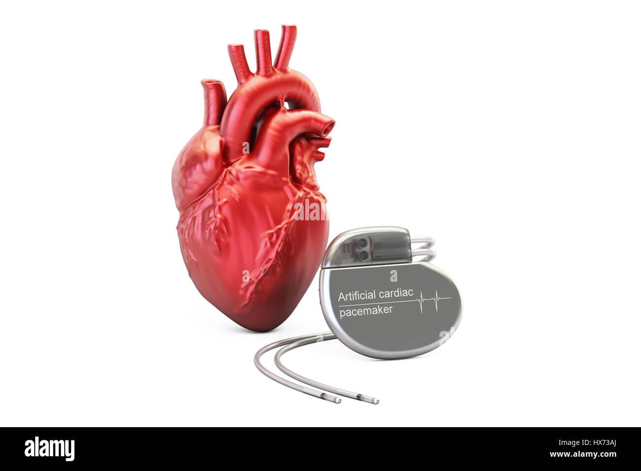 Artificial Cardiac Pacemaker Stock Photos Artificial Cardiac