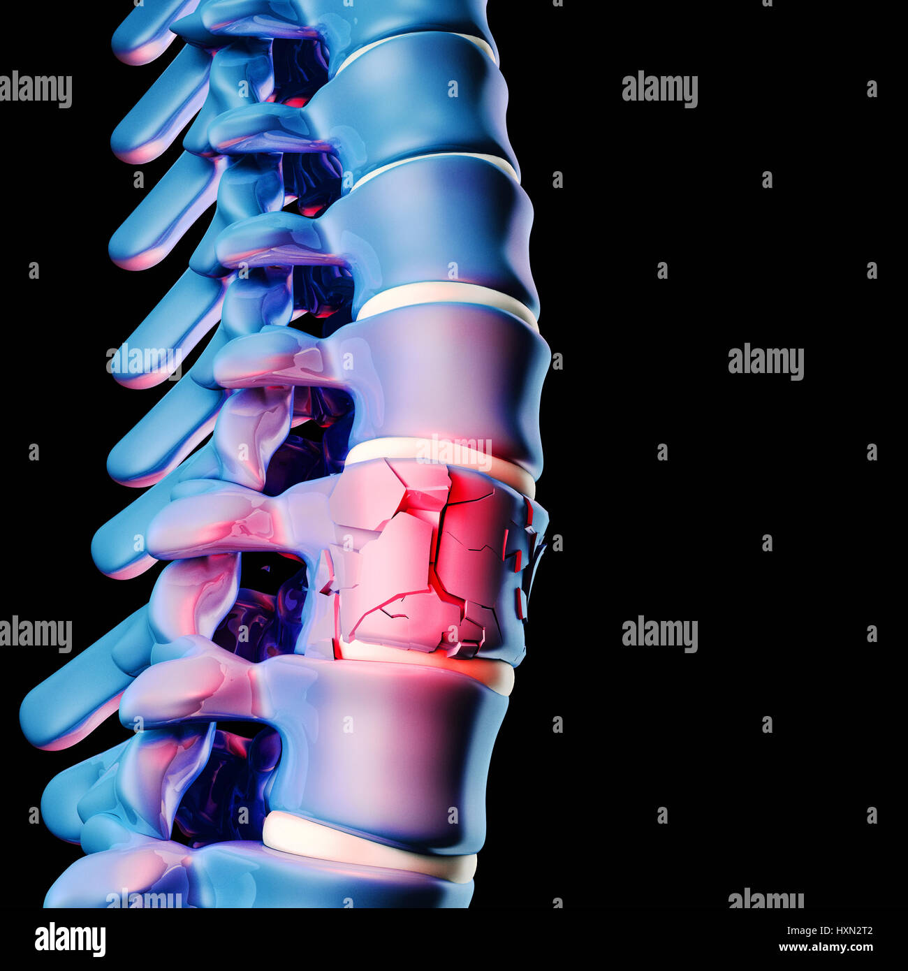 3d image of human spinal Stock Photo: 136916866 - Alamy