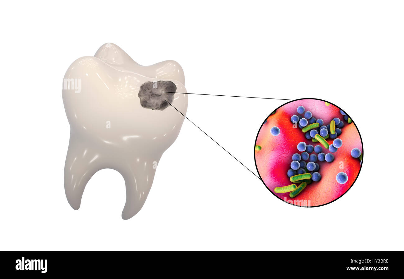 Tooth decay. Computer illustration of a tooth with a cavity and a close-up view of the bacteria that cause caries - Stock Image