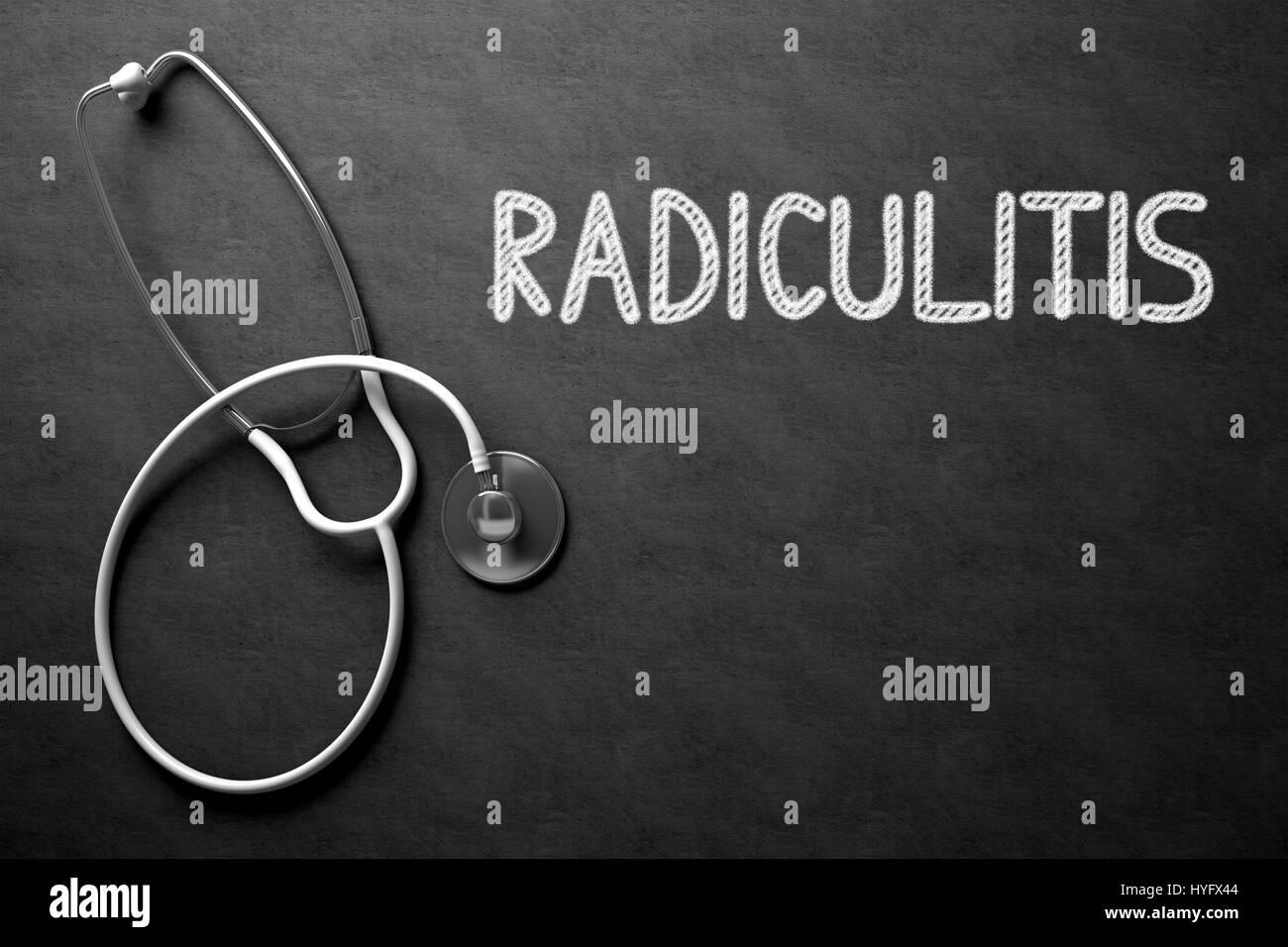 Radiculitis - Text on Chalkboard. 3D Illustration. - Stock Image