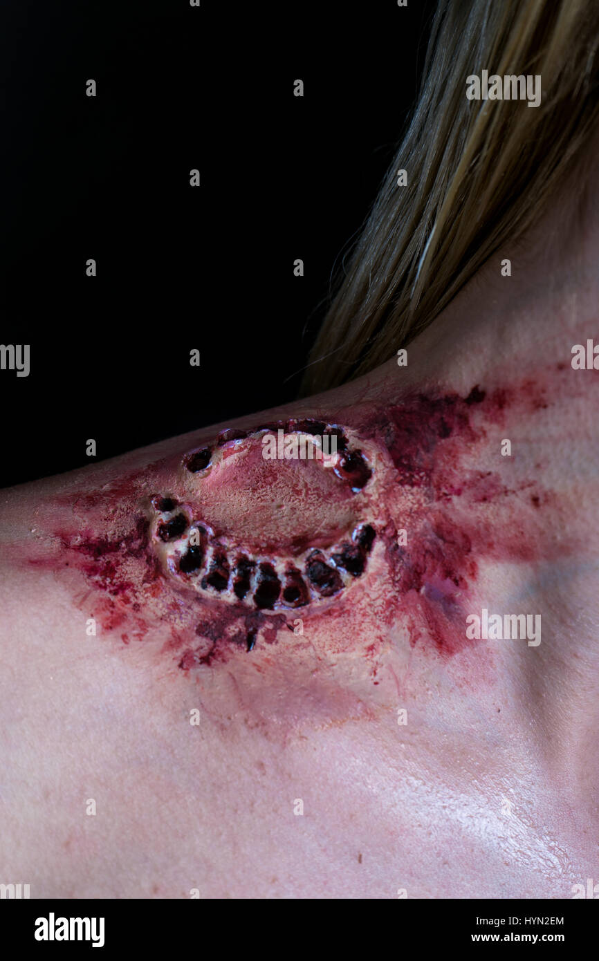 Fresh bloody bite from a zombie or monster on a shoulder of blonde woman. Scarry scene. - Stock Image