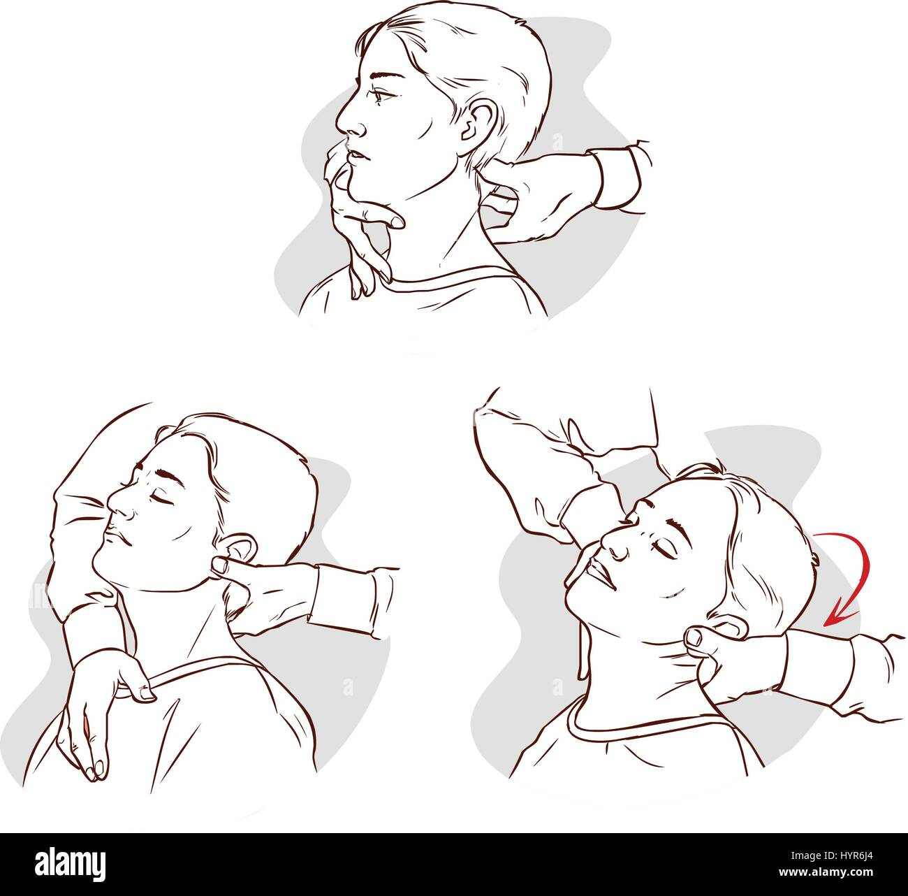 Vector illustration of a Gonstead Chiropractic for acute neck pain - Stock Image
