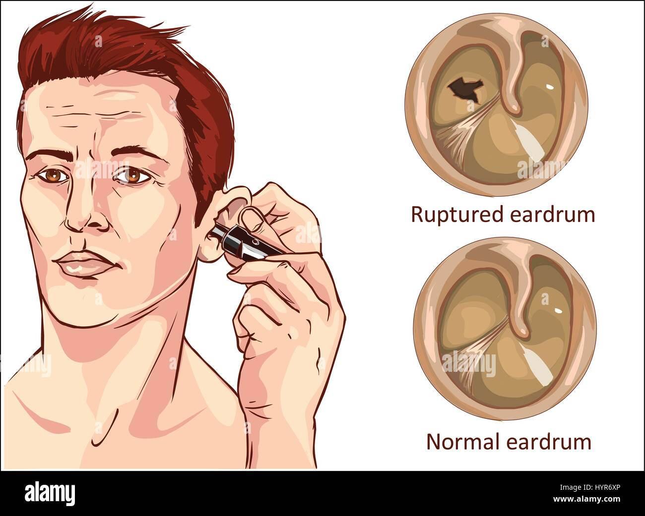 Save Download Preview ruptured eardrum and normal eardrum vector illustration - Stock Image