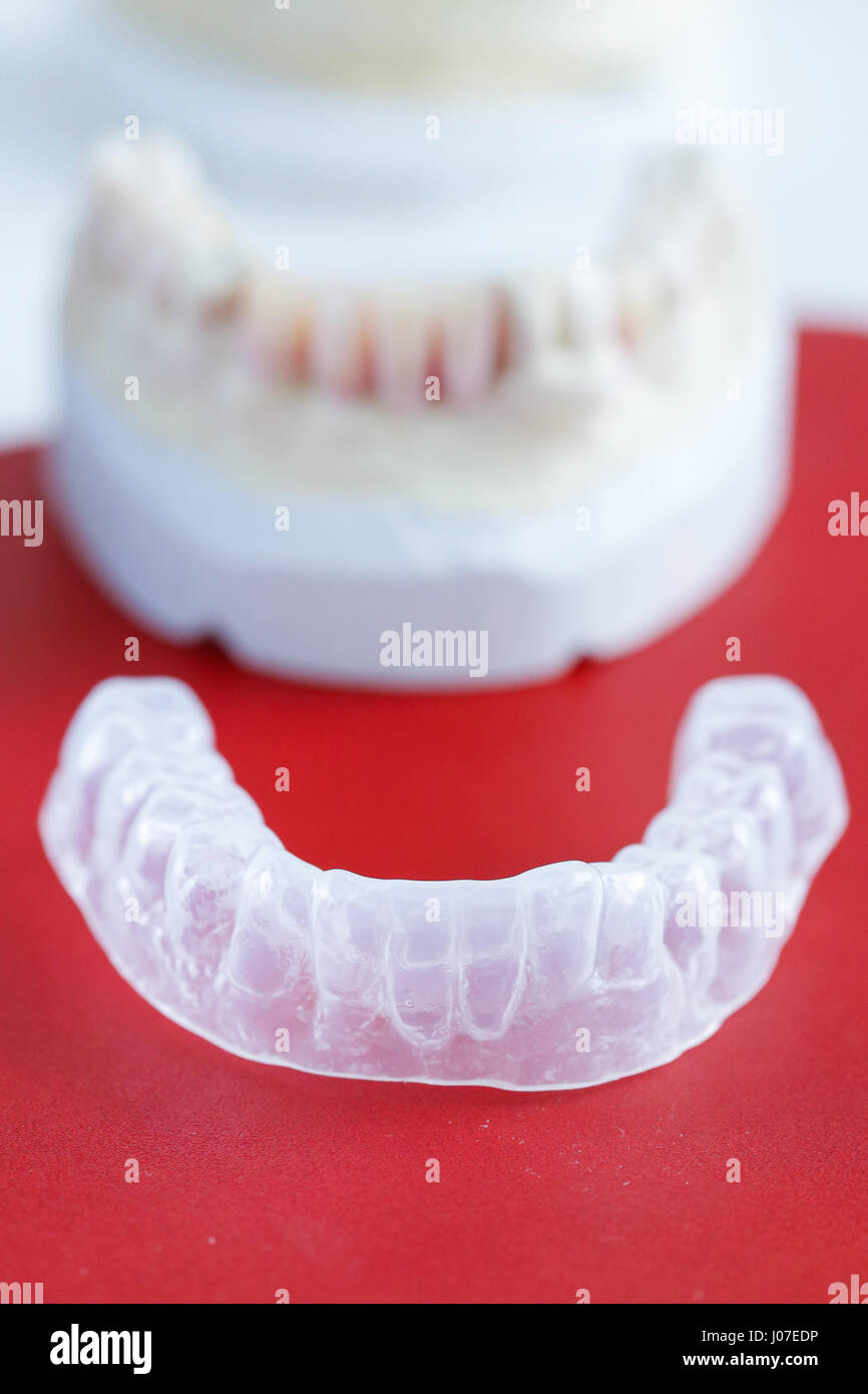Invisalign, invisible plastic teeth aligner with dental plaster mold in the background Stock Photo