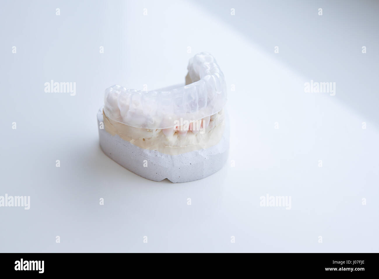 Invisalign, invisible plastic teeth aligner on a dental plaster mold Stock Photo