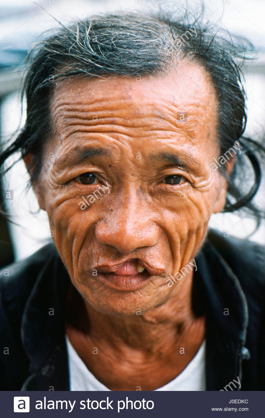China circa 1983 People Person Man Men Chinese Ethnicity Senior Mature  Elderly Mouth Problem Hair Lip Maybe Peoples Republic Of China CHN Asia  1980s