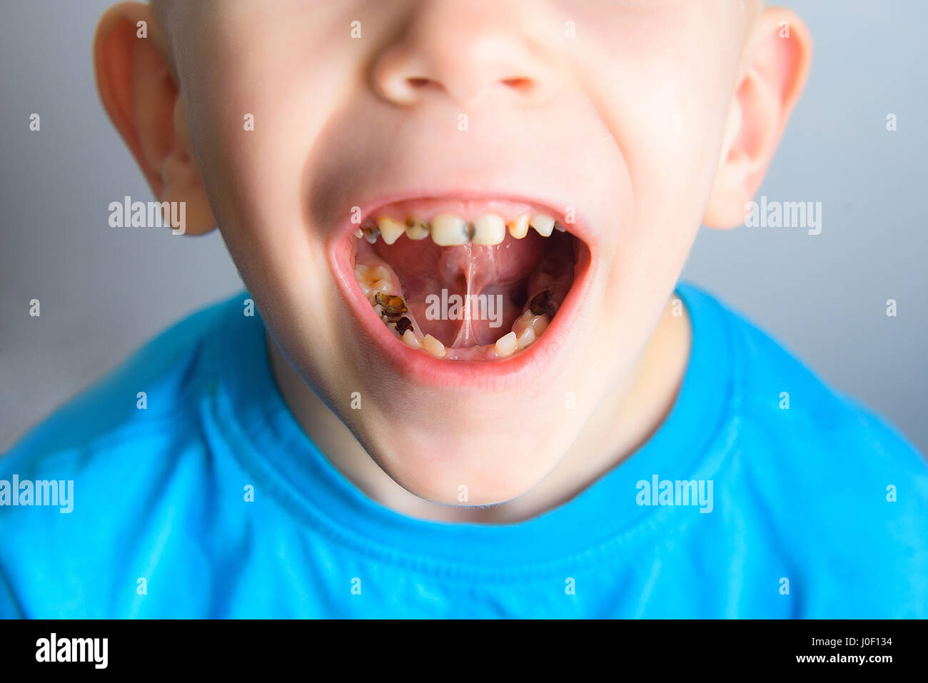 caries on the teeth of a young child blue tshirt stock