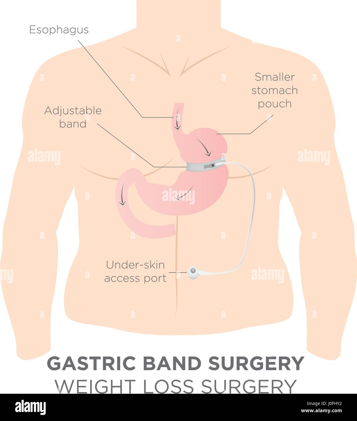 Gastric Band Weight Loss Surgery.  If you Tighten or Loosen it, It Lets More Food Slide Down in Lower Stomach. - Stock Image