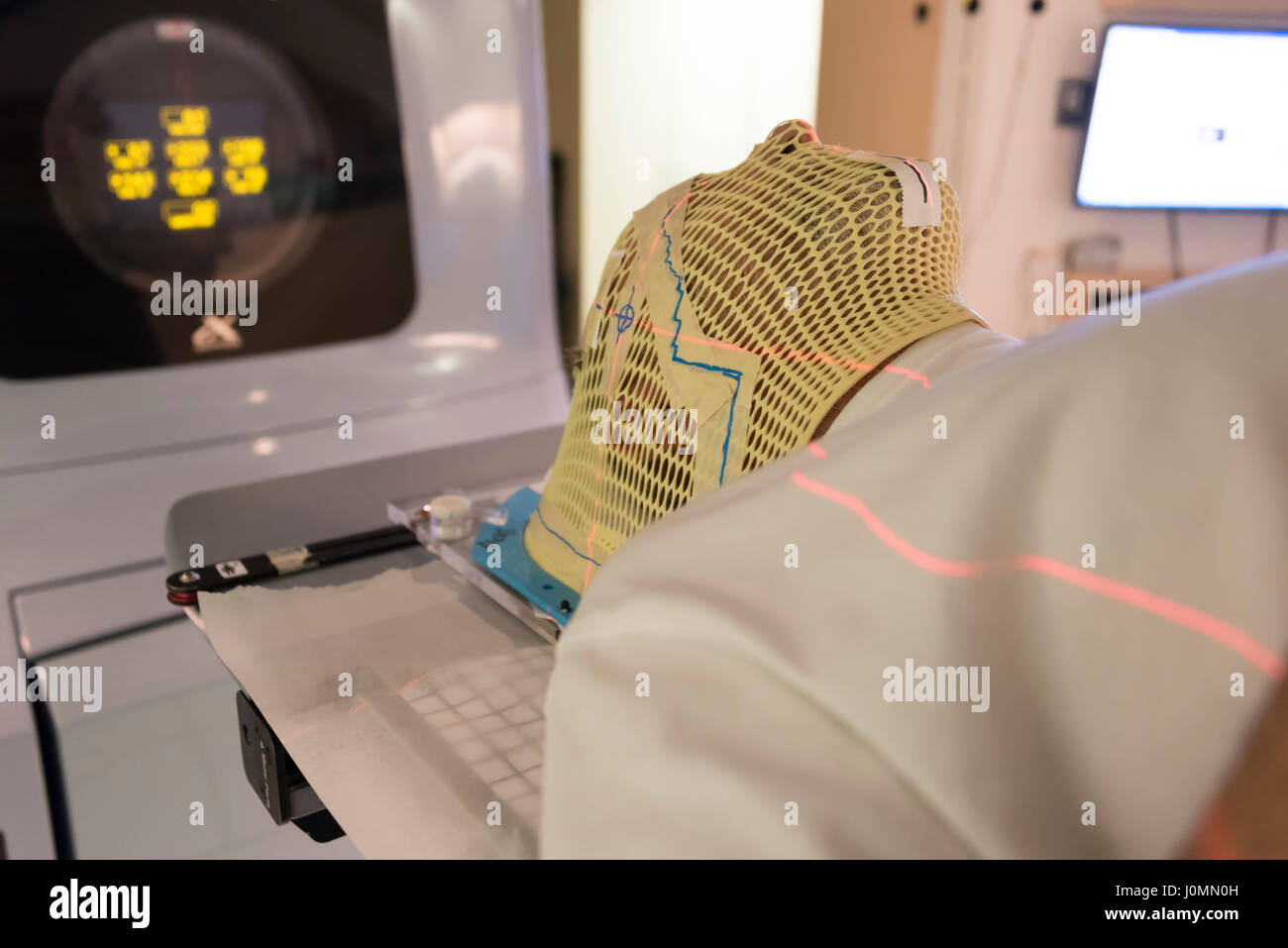 Patient Radiation therapy mask showing laser lines for targeting cancer cells in the brain - Stock Image
