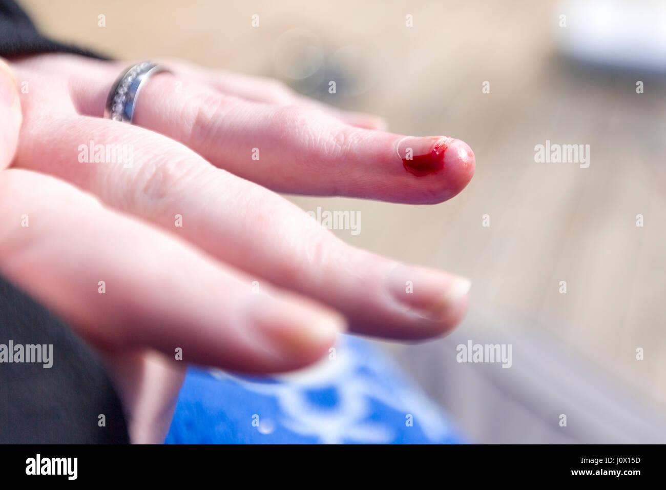 Blood Bleeding Hand Stock Photos & Blood Bleeding Hand Stock