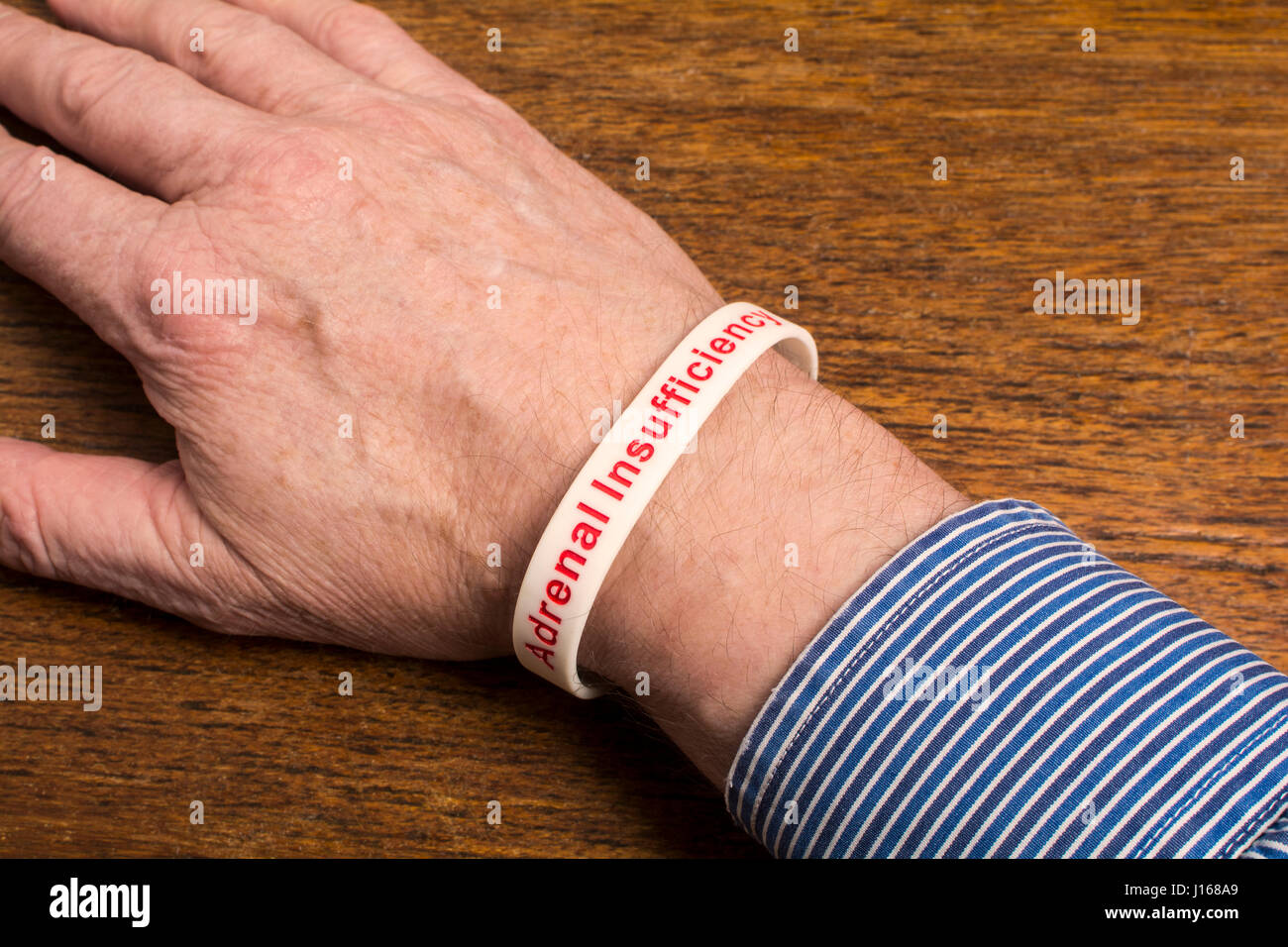 A medical alert wristband on a man's wrist - Adrenal Insufficiency - Stock Image