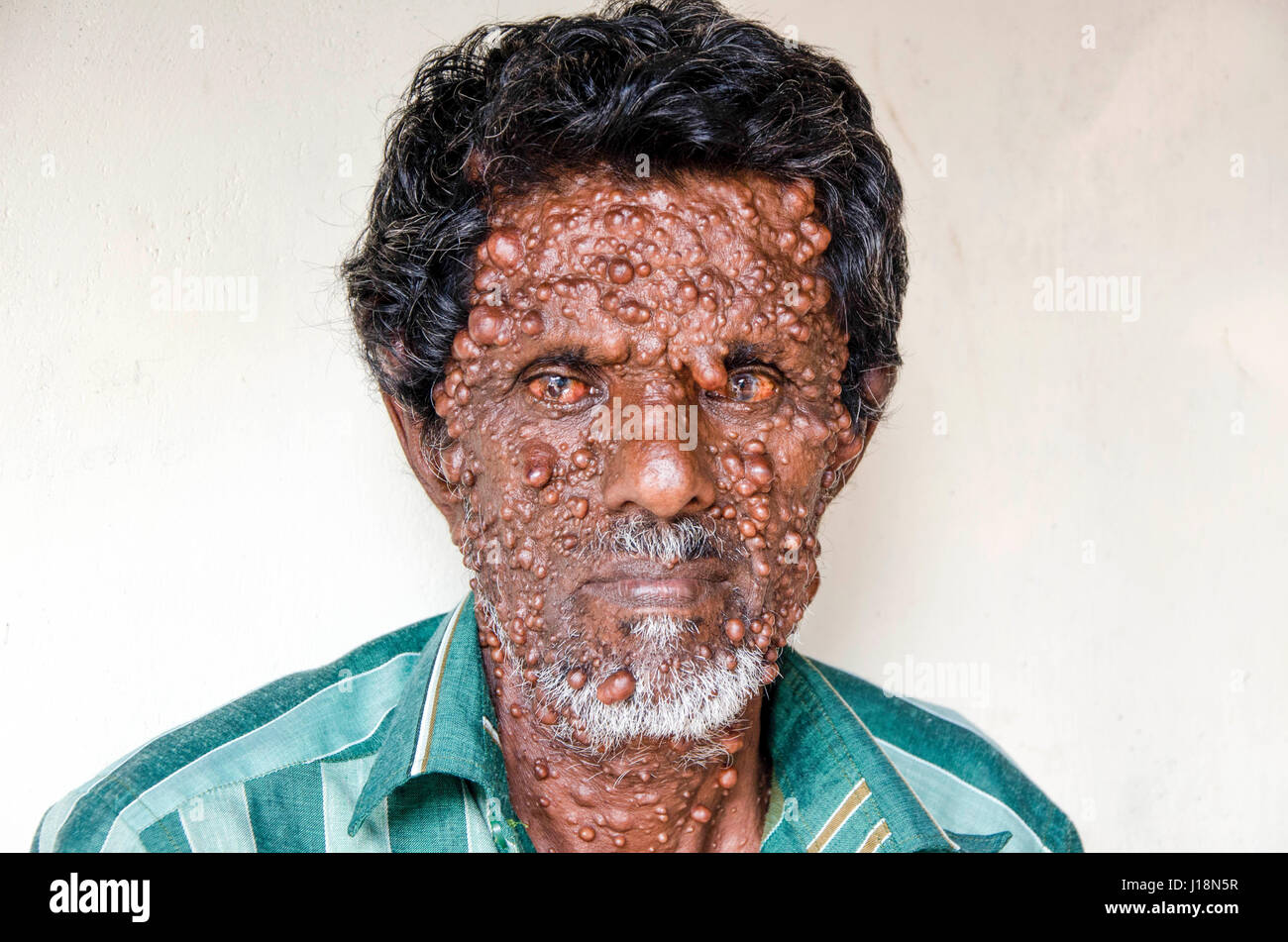 Man with big boils on face, kochi, kerala, india, asia Stock Photo