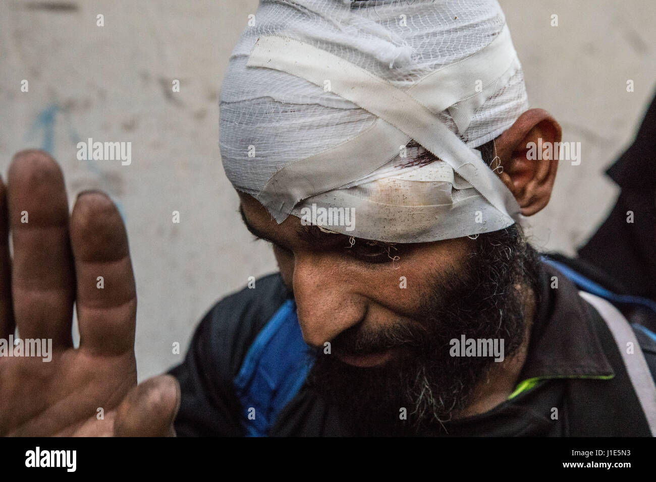 Mosul, Nineveh Province, Iraq. 19th Apr, 2017. A heavily bandaged civilian is evacuated from a house in the Al Thawra - Stock Image