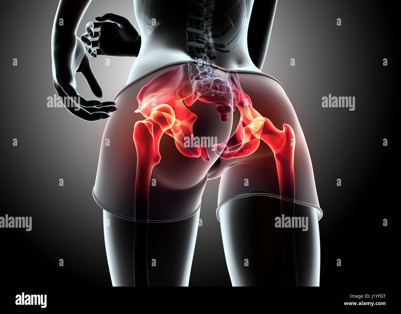3d illustration - woman runing pose with x-ray hip joint and Stock ...