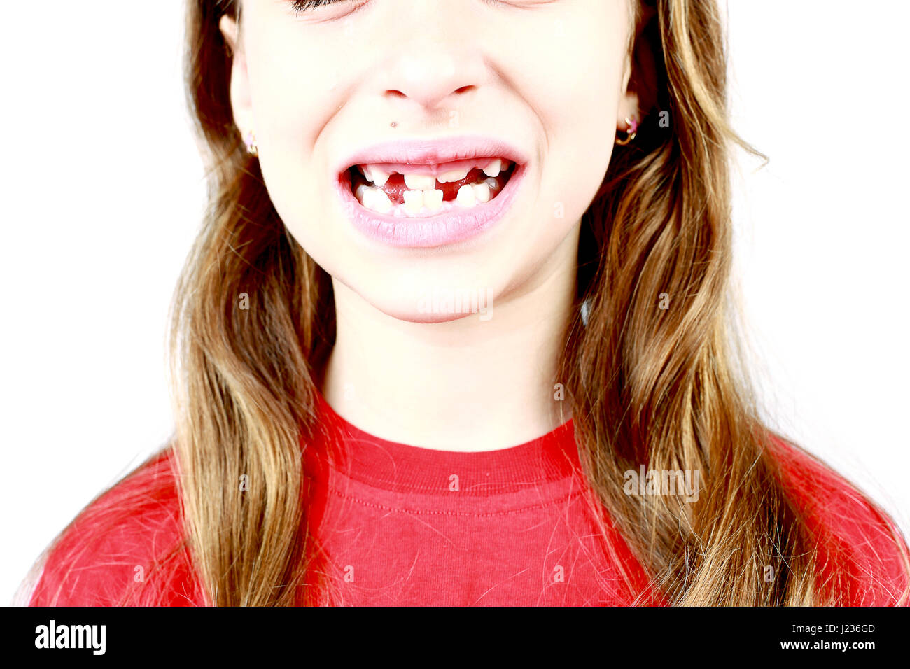 Young girl grimacing, showing off his first missing milk tooth - Stock Image