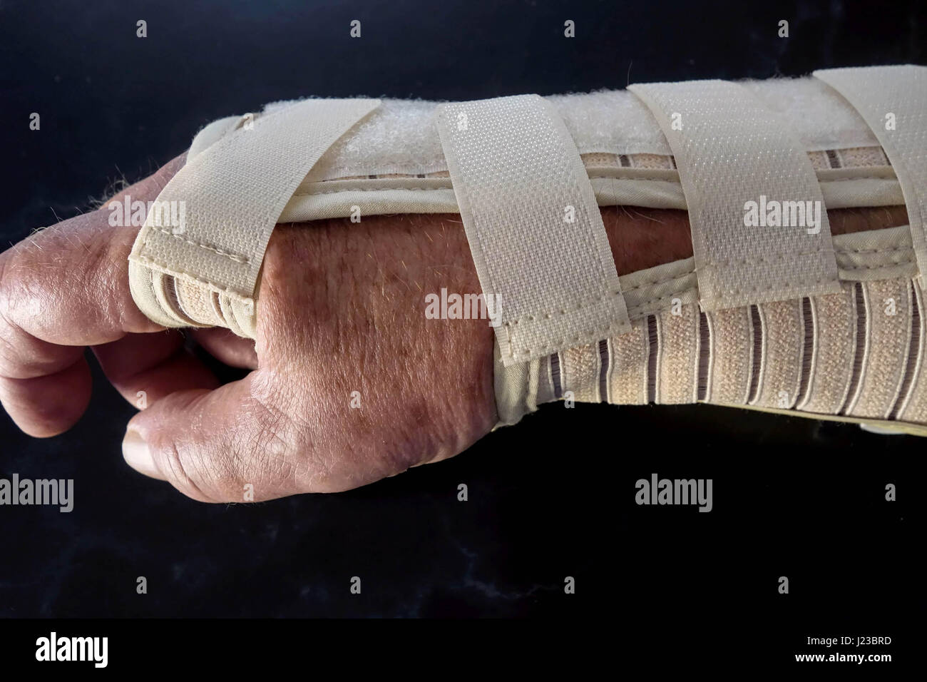 Sprained Wrist Support. Right Hand - Stock Image