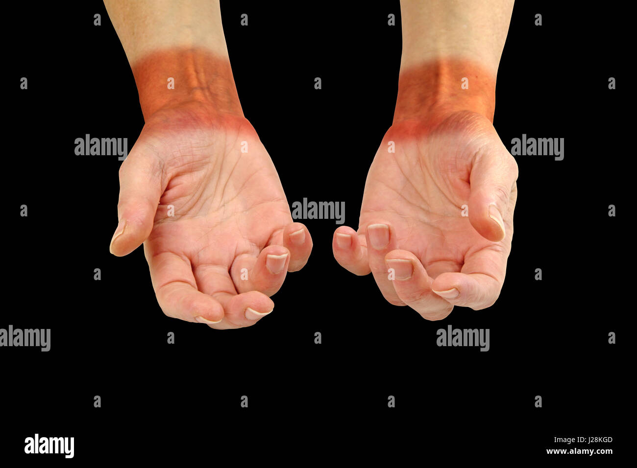 Repetitive Strain Injury Common Pain Areas - wrist and hand palms facing up showing painful redness across wrist - Stock Image